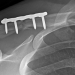 Dr. Steven Chudik, Orthopaedic Surgery and Sports Medicine Teaching and Research Foundation research on clavicle plate fixation comparison published in the Orthopaedic Journal of Sports Medicine